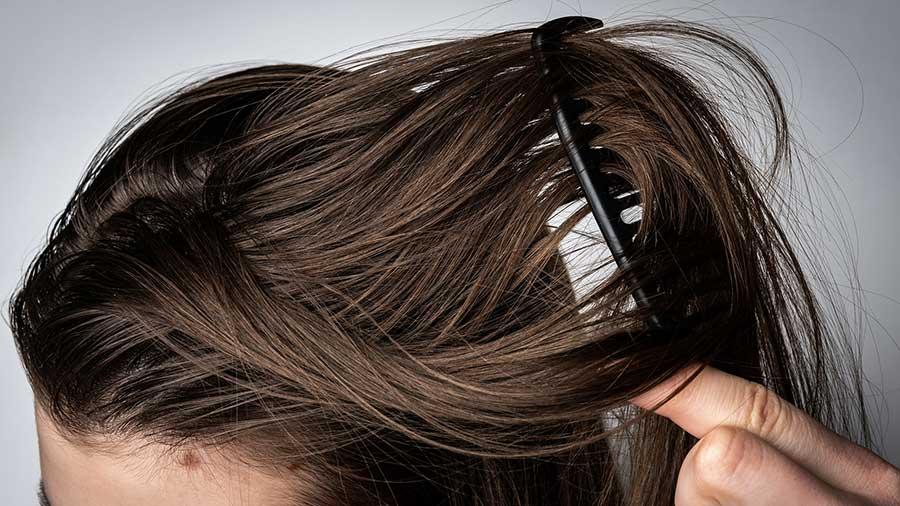 تشخیص موی چرب