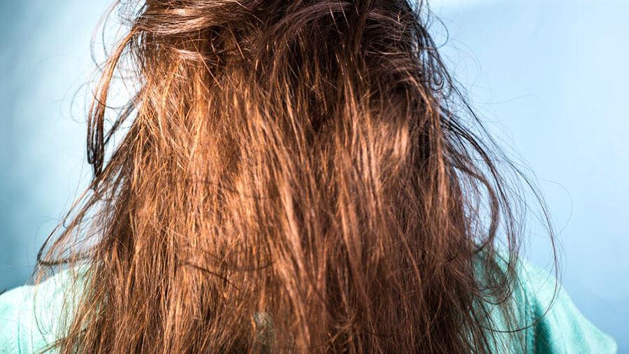 ویژگی های موی چرب