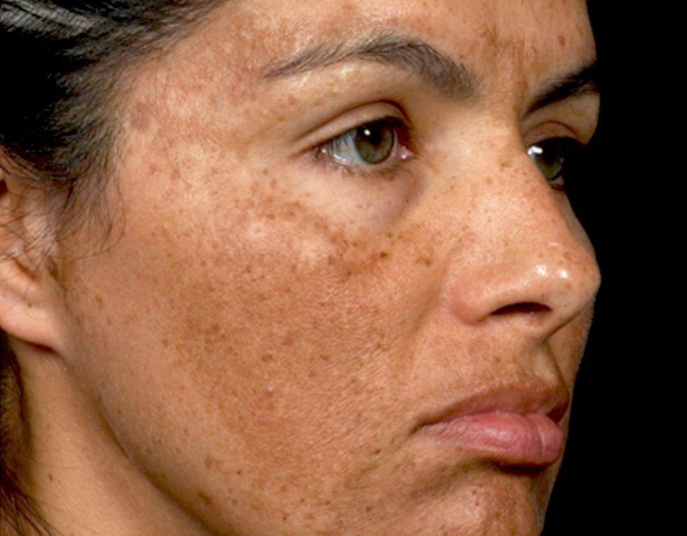 عوارض لوازم آرایش تغیر رنگ پوست