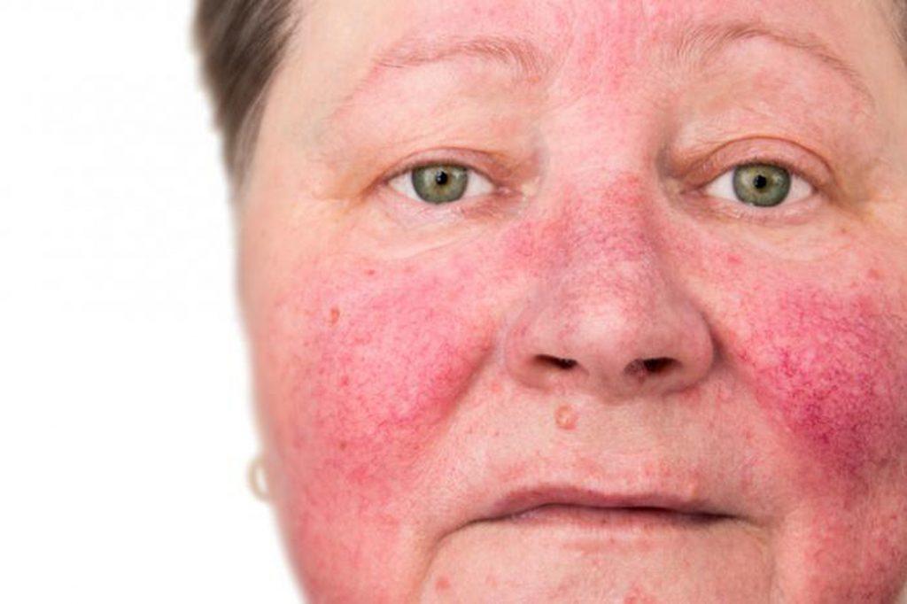 عوارض لوازم آرایش و حساسیت پوست
