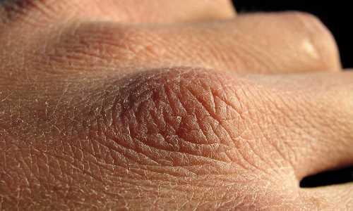 بررسی علل خشکی پوست