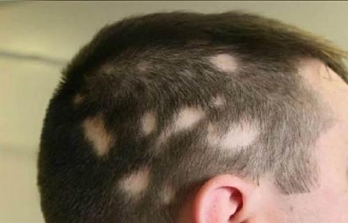 ریزش مو سکه ای و راه های درمان آن