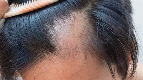 ریزش مو سکه ای و عوامل ایجاد کننده آن