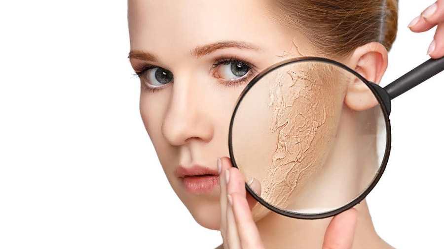 درمان خشکی صورت