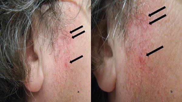 انواع ریزش مو: دیسکوید لوپوس اریتمتوسوس
