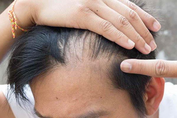 انواع ریزش مو: تلوژن افلوویوم