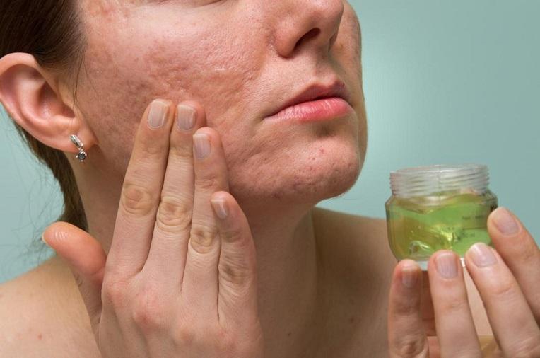 استفاده از روغن های گیاهی برای بستن منافذ پوست