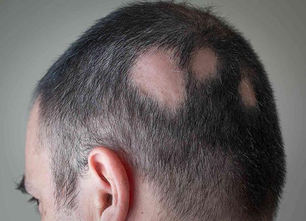 انواع ریزش مو: آلوپسی آرئاتا