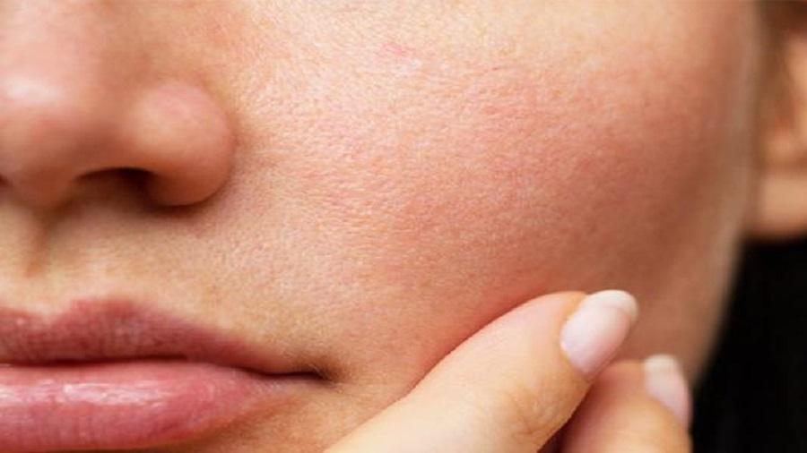 بستن منافذ پوست