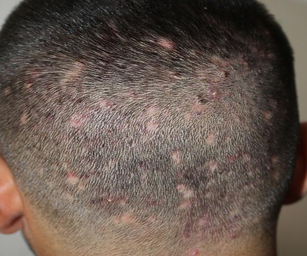 انواع ریزش مو: فولیکولیت دالولان