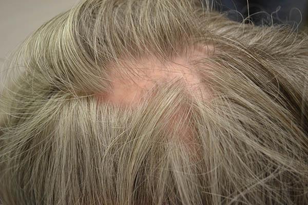 انواع ریزش مو: لیچن پلانوپیلاریس