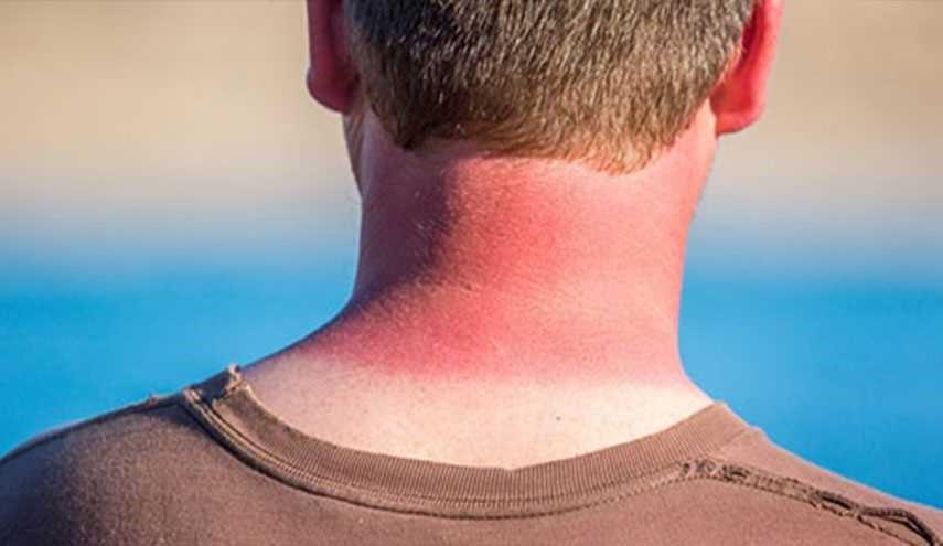 عدم تحریک پوست پس از آفتاب سوختگی
