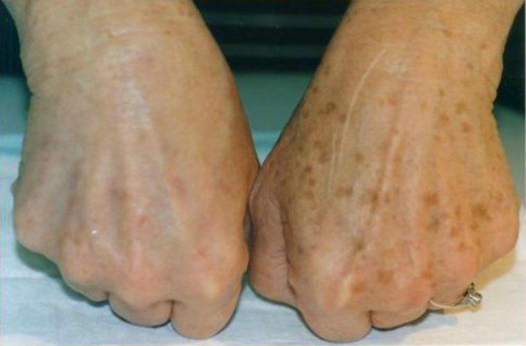 درمان لکه های قهوه ای روی دست