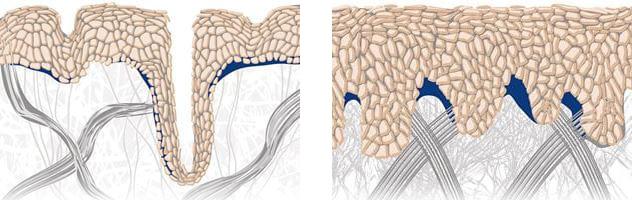 تصویر سمت راست:  در پوست جوان ، اتصالات محکم بین لایه ها باعث می شود رطوبت و مواد مغذی به لایه های قابل مشاهده به طور مؤثری تحویل داده شوند.  تصویر سمت چپ:  با گذشت زمان این اتصالات و سیستم ها کند می شوند