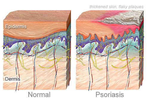 مقایسه لایه های پوستی سالم و پسوریازیس