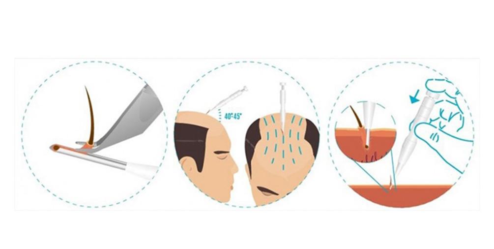 کاشت مو به روش مستقیم