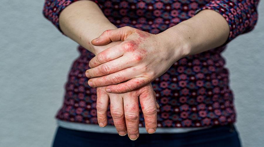 عوارض ناشی از اگزما