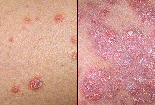 علائم پوستی پسوریازیس