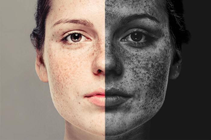 تاثیر آلودگی هوا روی پوست و بدن