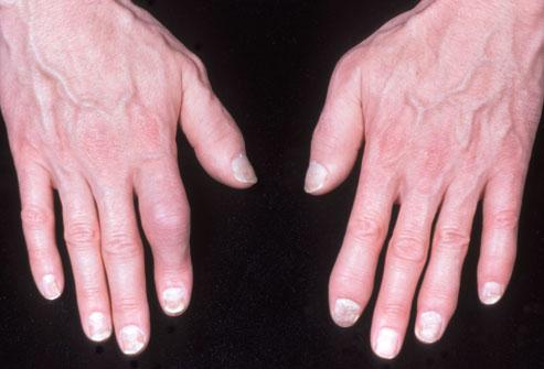آرتریت دست