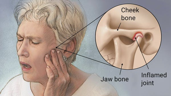 اثر ماساژ صورت بر مشکل TMJ
