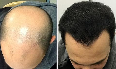 کاشت مو مقایسه قبل و بعد از جراحی