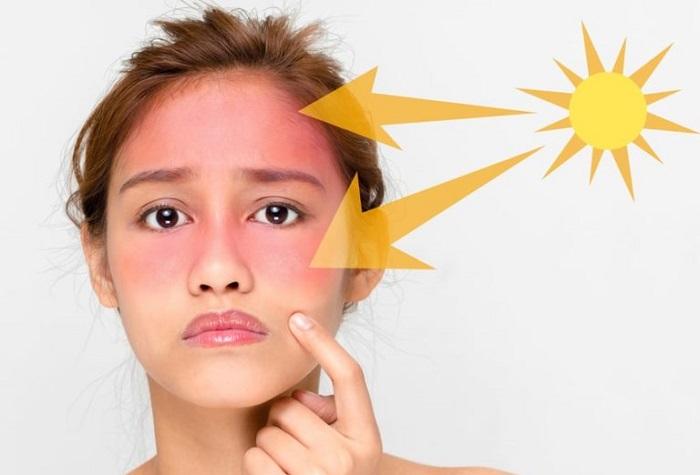 خواص شیر برای تسکین آفتاب سوختگی