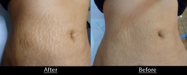 درمان ترک های پوستی با لیزر