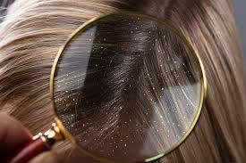 شوره سر یکی از عوامل خشکی پوست سر