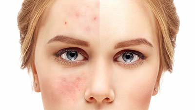 روغن سیاه دانه موثر در درمان لکه های پوستی