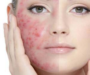 استفاده از روغن بنفشه برای درمان آکنه های پوستی