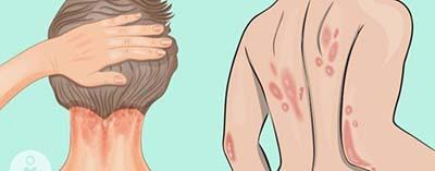 روغن سیاه دانه و بهبود روند پسوریازیس