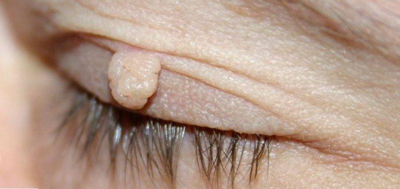 منگوله های پوستی بر روی چشم