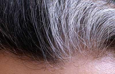 موهای سفید شده و درمان آن با روغن بنفشه