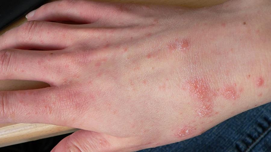 بیماری پوستی گال