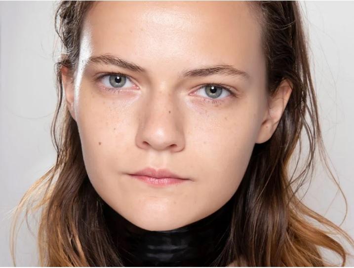 استفاده از اسید آزلائیک برای از بین بردن لک های پوستی