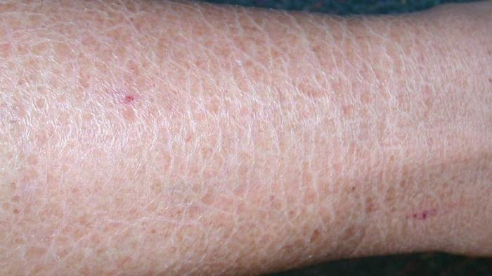 خشکی پوست یکی از دلایل خارش پوست