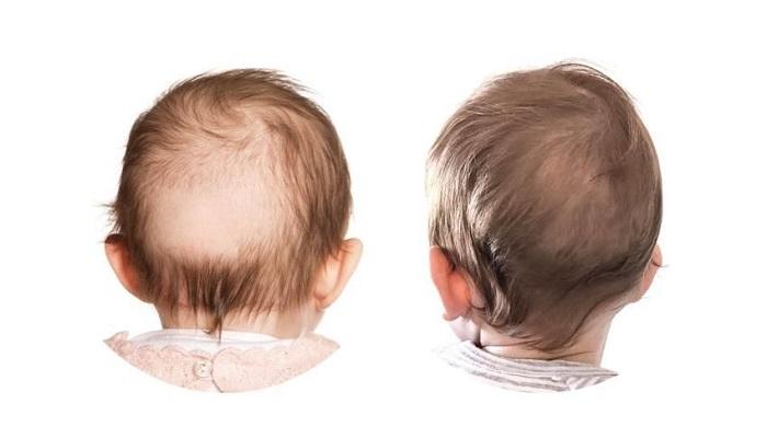 ریزش مو به دلیل اصطحکاک سر نوزادان با بالش