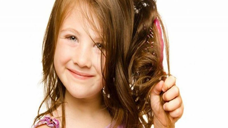 ریزش مو کودکان