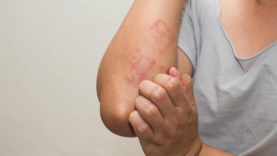 عفونت های پوستی
