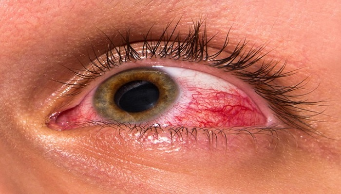 تاثیر مواد شیمیایی بر روی چشم
