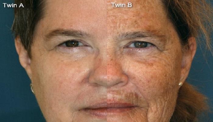 از عوارض سیگار بر پوست ایجاد لکه های پیری روی پوست