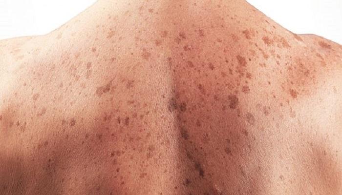ایجاد لکه های کبدی در قسمت پشت بدن