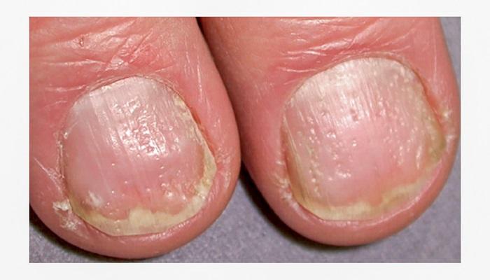 فرورفتگی در ناخن ها یکی از علائم پسوریازیس ناخن