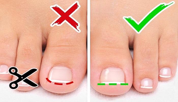 نحوه صحیح کوتاه کردن ناخن پا