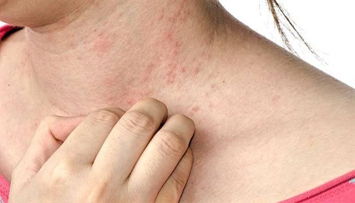 علائم حساسیت پوستی