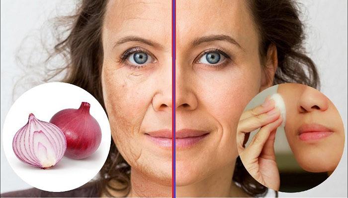 جلوگیری از چین و چروک پوست با ماسک پیاز