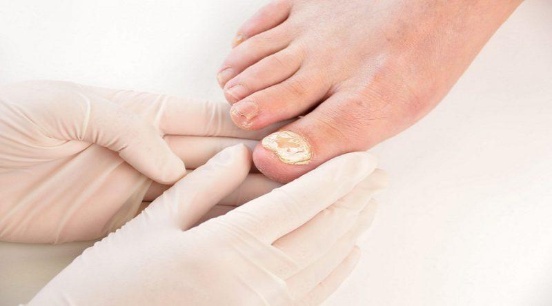 عفونت کوتیکول ناخن چه علائمی دارد؟