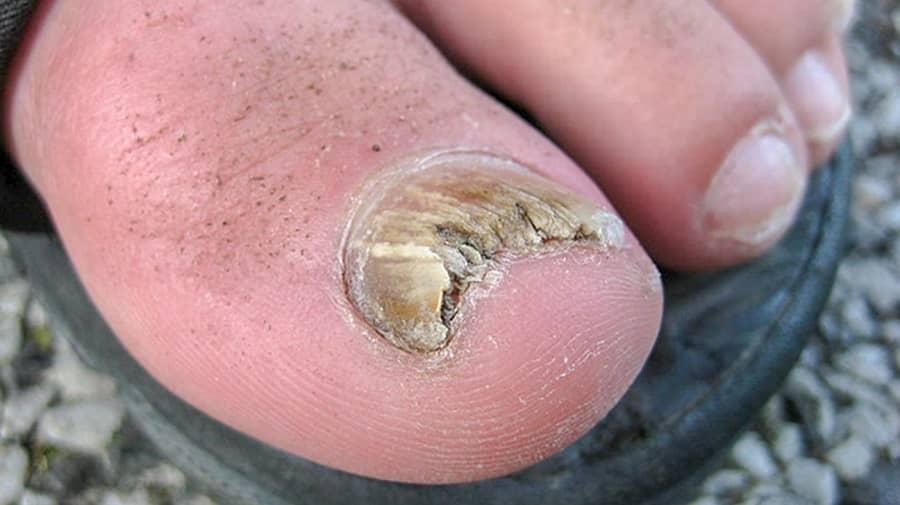 چگونه افراد به عفونت قارچی ناخن مبتلا می شوند؟