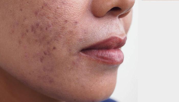 درمان لکه های پوستی و بهبود آکنه با روغن ترنج